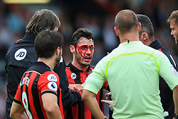 Adam Smith of Bournemouth bloody face after receiving a hit from a tackle - Mandatory by-line: Jason Brown/JMP - 24/09/2016 - FOOTBALL - Vitality Stadium - Bournemouth, England - AFC Bournemouth v Everton - Premier League