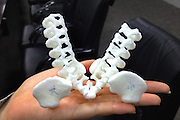 SHANGHAI, CHINA - JUNE 09: (CHINA OUT)<br /> <br /> Siamese Twins Succeed In Separation With Help Of 3D Printed Model<br /> <br /> 3D printed model according to a pair of siamese girl twins at Children\'s Hospital of Fudan University on June 9, 2015 in Shanghai, China. Children\'s Hospital of Fudan University accepted their 8th operations of separation surgery on a pair of siamese girl twins. The seperation surgery focused on the haunches in lower bodies of siamese twins and gained success with the help of 3D printed model which recovered body fabric of the twins in same proportion for medical workers\' accurate reference. It was said that it\'s first time that Children\'s Hospital of Fudan University applied 3D skills on separation surgery and the siamese girl twins were in good condition in their 80 days after birth.<br /> ©Exclusivepix Media