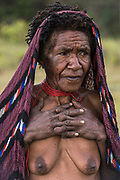 Dani tribe woman (Weetik)<br /> Budaya village<br /> Suroba<br /> Trikora Mountains<br /> West Papua<br /> Indonesia<br /> Fingers removed after the death of a relative. First crushed with a stone then cut off!