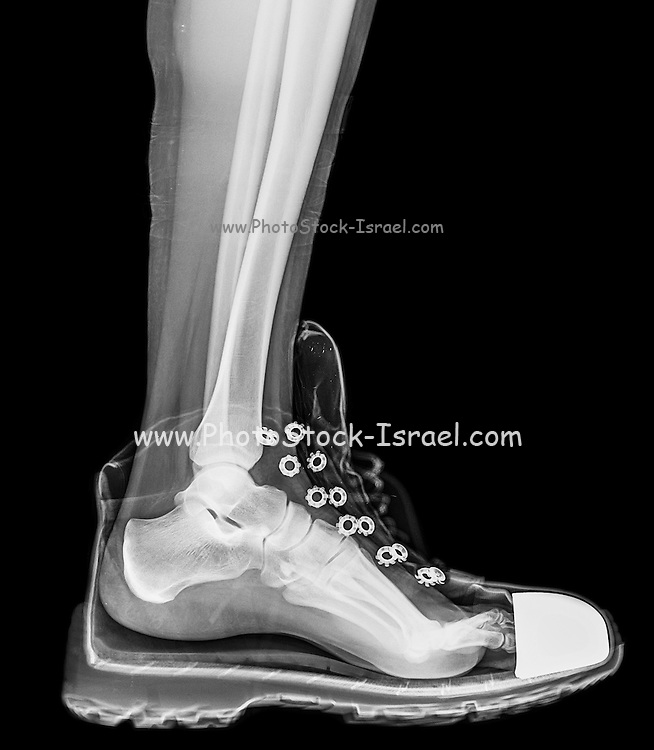 X-Ray of a foot and ankle in a running shoe