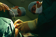 We are looking upwards into the faces of two surgeons wearing medical masks and surgical gowns as they carry out a wisdom tooth extraction procedure at the famous St. Bartholomews (Barts) Hospital in London, England. With eyes focussed on their work, the two health professionals are intently looking into the mouth of their patient who is covered in clean green sheets but remains unseen to the viewer. Strong operating theatre lights shine down on to the patient and we see the men's gloved hands reaching carefully, avoiding infection or bacterial problems like MRSA. Barts is Britain's oldest hospital - founded in 1123 - and boasts a progressive policy of encouraging day-surgery for out-patients allowing patients to return home soon after their minor operations.