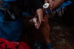 January 19, 2019 - Southern Pines, North Carolina, US - Jan. 19, 2019 - Southern Pines N.C., USA - An ultra marathoner prepares his feet for the race to come before the start of the 10th Annual Weymouth Woods 100km ultra marathon at the Weymouth Woods Nature Preserve. Runners needed to complete 14 laps of the 4.47 mile course for 62.58 miles in under the 20-hour time allotment. (Credit Image: © Timothy L. Hale/ZUMA Wire)