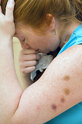 Woman crying with bruises on her arm,