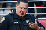 A police officer is bloodied after taking down a drunken and roudy New York Giants fan during a NFL game between the San Francisco 49ers and the New York Giants at Levi's Stadium in Santa Clara, Calif., on November 12, 2017. (Stan Olszewski/Special to S.F. Examiner)