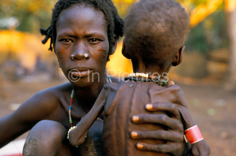 South Sudan. Alvat Atuiai with her child  waiting forfood didstribution at a feeding centre.