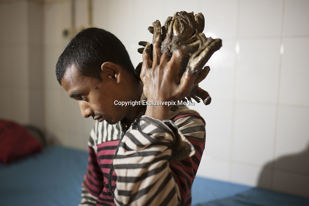 Jan. 30, 2016 - Dhaka, Bangladesh - DHAKA, BANGLADESH - <br /> <br /> The man who's turning into a TREE: Bangladeshi suffers rare condition that causes tree-like 'roots' to grow from his hands and feet <br /> <br /> A Bangladeshi man dubbed as the tree-man because of wart-like lesions growing from his hands and feet has been admitted to hospital. <br /> Abul Bajandar, 25, from Khulna, has been suffering from a disease known as Epidermodysplasia Verruciformis - a rare and inherited skin disorder - for the past seven years. <br /> Doctors at the Dhaka Medical College and Hospital (DMCH) will now decide on his treatment after forming a medical board of experts.<br /> <br /> Dr Samanta Lal Sen, chief coordinator of National Institute of Burn and Plastic Surgery of the DMCH, made the announcement today. <br /> On duty doctors visited Mr Bajandar at the burn unit, where he had been admitted today. <br /> According to the dailystar.net, the ricksaw-van puller was previously taken to the Gazi Medical College Hospital in Khulna. <br /> According to local reports, the original tree-man Dede Koswara, of Indonesia, died today. Tribunnnews.com reported that it wasn't the disease to cause his death. <br /> In 2008 the Discovery Channel told the story Mr Koswara. In the programme, he returned home from hospital after having six kilo warts surgically removed from his body. <br /> An American doctor had previously said the warts were the result of severe Human Pappiloma Virus (HPV) infection and doctors thought his type was the worst in the world. <br /> The father-of-two first noticed the warts on his body after cutting his knee as a teenager.<br /> He was later sacked from his job and shunned by neighbours when the branch-like growths covered much of his body and stopped him from working. <br /> At the time it was reported that he would need at least two operations every year. <br /> Previously, Mr Koswara was forced to take part in a circus act in Bandung in order to make ends me