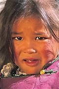 Mongolian Nomadic Child<br />Lake Hovskol region, Northern MONGOLIA<br />cracked cheeks from harsh winter
