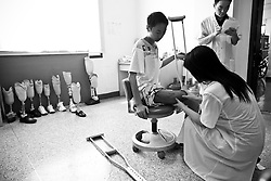 A patient is examined at the Sichuan Limbs Maim Restoration Centre in Chengdu, Sichuan in China.