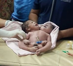 Baby born with two heads and three hands in central India - 25 Nov 2019
