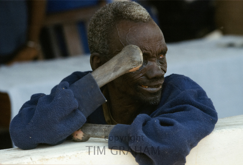 Man suffering from incurable Leprosy in The Gambia, Africa