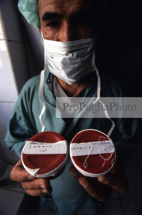 KABUL 16 August 2005..Maiwand Hospital, Plastic Surgery....A Doctor at the RSU  is holding Shabana's tumor samples. ..Those will be later examinated to know  whether the tumor is benign or malignant.....Shabana. a nine months  old Afghan girl, has been diagnosed with a 'neurofibroma'. This is a tumor or growth located along a nerve or nervous tissue. It is an inherited disorder. If left unchecked, a neurofibroma can cause severe nerve damage leading to loss of function to the area stimulated by that nerve.....The Rehabilitative Surgery Unit (RSU) at Maiwand Hospital is fully supported by the French NGO Medical Refresher Courses for Afghans (MRCA), also by the French Minister of Foreign Affairs, and by the Embassy of Japan under the Grant Assistance for Grassroots Project (GAGP). The Italian NGO Operation Smile Italia Onlus provides training to the Doctors. ....Maiwand Hospital dates back to the rein of Nadir Shah in the 1930s.