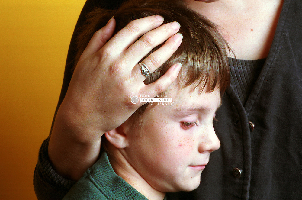 Young boy standing with adult's protective hand cradling head,
