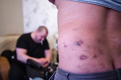 The bruises left after injecting heroin