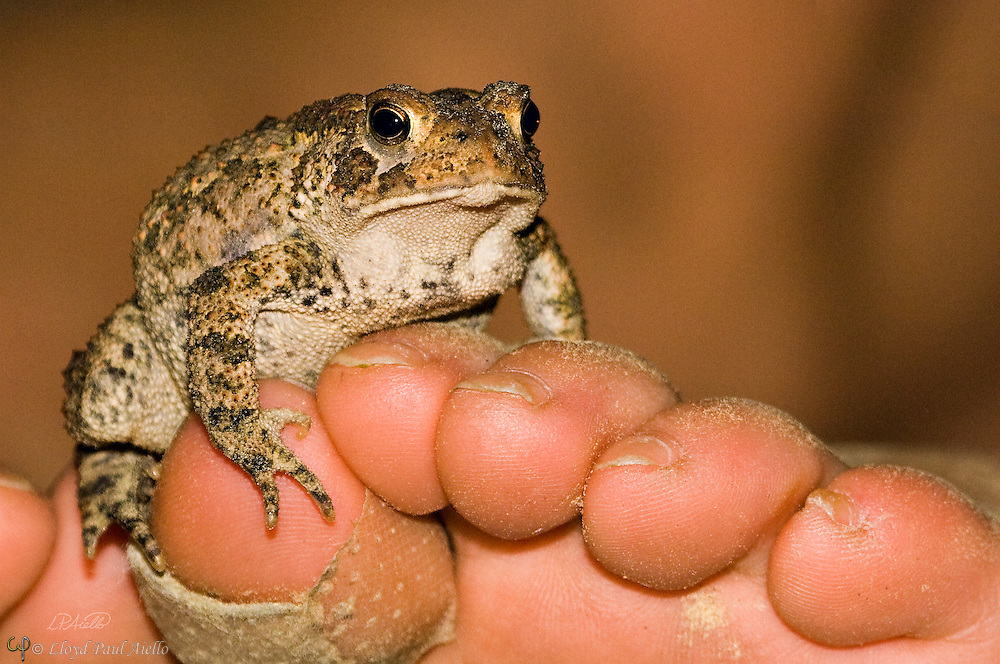 A common toad  (Bufo bufo) climbs onto a bandaged 8 year old girls toe.