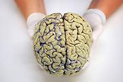 Nederland, Nijmegen, 26-4-2010Menselijke hersenen, geconserveerd door de afdeling anatomie van het Radboud academisch ziekenhuis.Foto: Flip Franssen