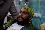 Mcc0030300 . Daily Telegraph..A wounded Libyan rebel fighter is brought from the frontline to Ajdabiyah hospital fro treatment for a gunshot wound to the leg...Ajdabiyah 5 April 2011