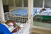 6 month-old baby Kwaneli on a drip feed  through a nasal-gastric tube in a cot at Clairwood hospital in Durban, South Africa. This hospital is one of the places that BigShoes Foundation provide pediatric palliative and hospice care.