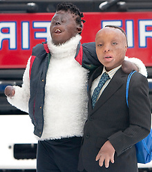 ©London News Pictures 2010.12.20. (L) Dorah Mokoena, 16, and (R)Sizwe Hlope, both badly burnt by fire, visit London Fire Brigade to warn of the dangers of candles at christmas on 20th Dec 2010.Photo credit should read: Fuat Akyuz/London News Pictures