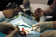 Nederland, Nijmegen, 2-4-2005..In het CWZ, canisius wilhelmina ziekenhuis, is bij de polikliniek urologie het besnijdeniscentrum gestart. Hier worden moslim jongens door een uroloog, chirurg besneden onder plaatselijke verdoving, anesthesie. Het centrum werkt onder de parapluie van het ziekenhuis, maar kan de verrichting, ingreep los van de verzekeraars tarieven uitvoeren waardoor het een stuk goedkoper wordt. Besnijdenis, islam..Foto: Flip Franssen