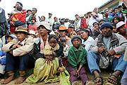 Operation Smile<br /> Antsirabe, Madagascar