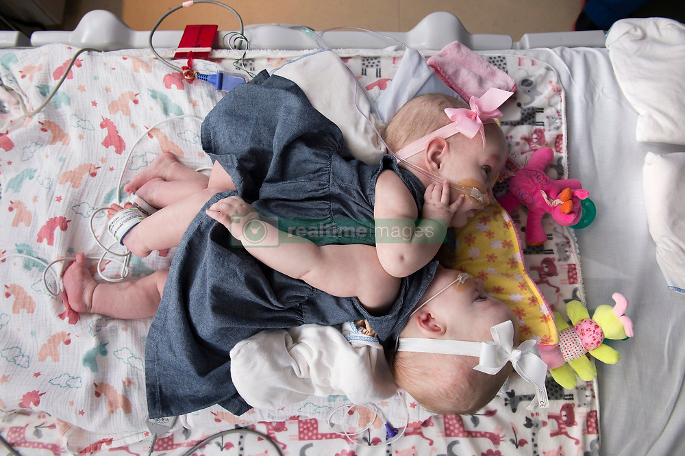 "A set of one-year-old conjoined twins who had been sharing part of their hearts have been successful separated following a mammoth seven-hour operation. Anna and Hope Richards were separated at the Texas Children's Hospital in Texas, it was announced this week, by a multidisciplinary 75-strong team of surgeons, anesthesiologists, cardiologists and nurses. The girls were delivered via C-section on 29 December, 2016, at 35 weeks gestation, weighing a combined 9lbs 12oz (4.4kg) and were conjoined at their chest and abdomen, through the length of their torso and shared the chest wall, pericardial sac (lining of the heart), diaphragm and liver. In addition they had large blood vessels connecting their hearts. The twins are now recovering at the hospital and are expected to be strong enough to go home in about a month's time. ""We've thought about and prayed for this day for almost two years,"" their mother Jill Richards said, who welcomed the girls along with her husband Michael and their sons Collin and Seth. ""It's an indescribable feeling to look at our girls in two separate beds."" The epic surgery was carried out on January 13 and involved planning and preparation before the girls were even born. In November last year, aged 11 months, the twins underwent a surgical procedure to place tissue expanders to allow their skin to grow and stretch ready for their separation. Dr. Larry Hollier, surgeon-in-chief and chief of plastic surgery at Texas Children's Hospital, said: ""The success of this incredibly complex surgery was the result of our dedicated team members' hard work throughout the last year. ""Through simulations and countless planning meetings, we were able to prepare for situations that could arise during the separation. ""We are thrilled with the outcome and look forward to continuing to care for Anna and Hope as they recover."" The Richards family, from North Texas, learned Jill was carrying conjoined twins during a routine ultrasound. The fam"