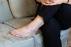 © Licensed to London News Pictures . 25/09/2018 . Bury , UK . North Korean refugee JIHYUN PARK (50) shows injuries to her foot inflicted by torturers in North Korea , at her home in Bury . Jihyun was imprisoned , tortured and trafficked by the regime in North Korea before she managed to escape with the help of her husband . Photo credit : Joel Goodman/LNP
