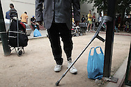 An immigrant fron Iran show his injuries after he stepped on a mine in his country. He the decided to move to Greece