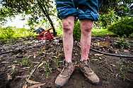 """Wilmo Moreta, teacher, her incurable and unknown skin disease is due to water pollution that used years ago when no one thought it was damaging the presence of oil in the environment. He compare of Texaco disaster of a war because many of his friends have died from cancer. He's taking pills against cancer. """"My skin is like a tomato,"""" he says..One of his sons, and mental retardation.  ECUADOR"""