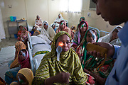 Dr Mohamed Shaheen performs an eye examination on 28 year old Reksona after performing Cataracts surgery the evening before on the IFB Jibon Tari Floating Hospital moored up on the banks of the Modhumoti River.  The Jibon Tari normally moves location every 3 months to remote riverine and offshore areas. It was launched in 1999 and has been major success, reaching more that 200,000 people.<br /> Impact Foundation Bangladesh (IFB) provide care, support and treatment to people with disabilities in Bangladesh.