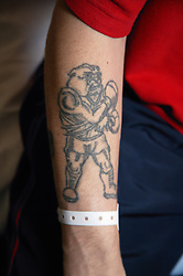 Close up of leukaemia patients tattoo of a fighting bulldog with boxing gloves a reflection of his positive spirit,