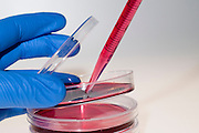 Cell cultures in Petri dishes