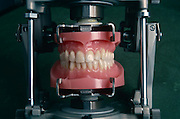 Acrylic teeth samples displayed at Ivoclar in Schaan, Liechtenstein who export 60 million false dentures a year worldwide.