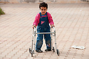 Tunisia , Medenine transit centre for refugees from Libya. 4 year old Noor, niece of fighter killed in Nalut. She was born prematurely, at 8 months. Her disabilities are believed to be due to the power failing in Nalut hospital and her incubator was off for 20 minutes. Since she has been in Tunisia has  been having physiotherapy every day and is starting to walk with a frame the Red Crescent has given her.
