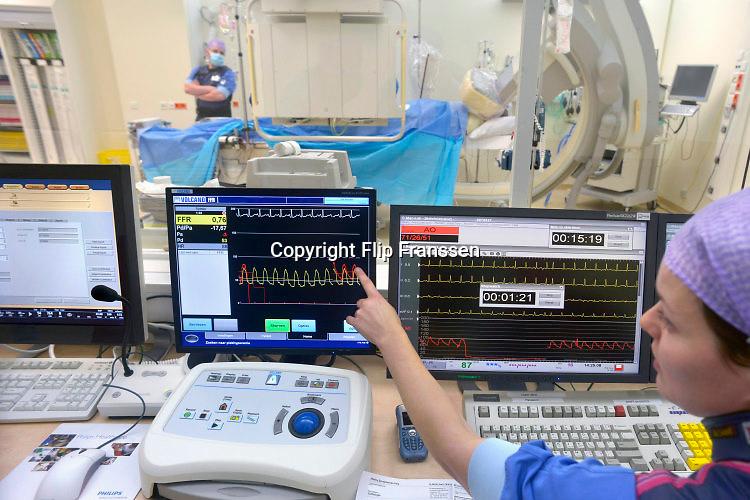 Nederland, Nijmegen, 26-6-2015Een arts onderzoekt het hart en de kransslagader van een patient in de katheterisatiekamer. Via een rontgenapparaat van Philips medical systems  ziet hij wat hij doet met de draad, het instrument, die in de slagader zit. Het stralingsniveau van dit rontgen apparaat is sterk verminderd door softwareverbeteringen. Het beeld is daardoor korreliger, maar nog goed te bekijken.Foto: Flip Franssen/Hollandse Hoogte
