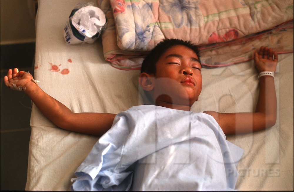 A young Laotian boy recovers from cleft lip surgery preformed by Operation Smile surgeons. Laos, Southeast Asia