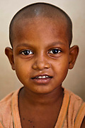 A young Indian child who is a patient at a health clinic in Tehkhand Slum, Delhi, India.