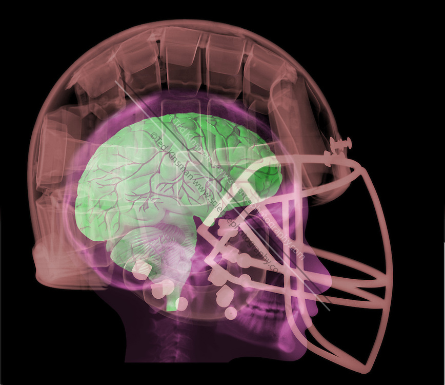 An x-ray of a human head in a football helmet.  The modern helmet is an important safety device.