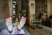 Havana, Cuba. June 2016. Martin, a TV set designer for a state television channel, resting at home to heal his feet injured at work.