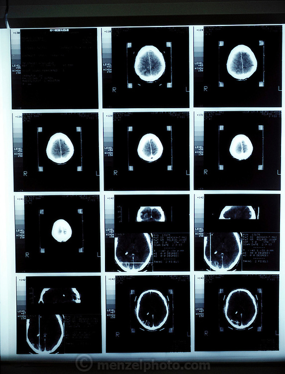 CAT (computer-aided tomography) scans of a brain tumor. (1983)