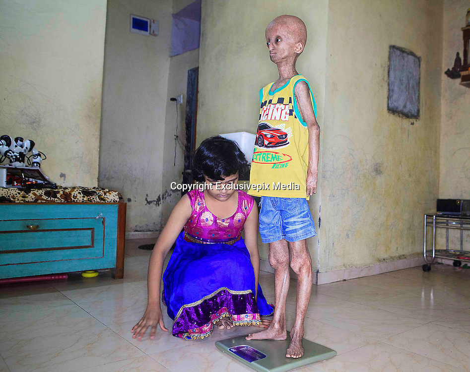 """Bhiwandi – INDIA. EXCLUSIVE<br /> The 3 Wishes : A Father's Race against Time <br /> <br /> Nihal Bitla is a 14 years old boy, with bright eyes & child like innocence,  but has the body of an elderly man, with wrinkled leathery skin, a bald enlarged head, and withered limbs.<br /> <br /> Nihal, who lives on the outskirts of Mumbai, India, suffers from a rare genetic disorder called Hutchinson-Gilford  Progeria Syndrome, which causes him to age eight times faster than normal.<br /> <br /> <br /> """"I ignore it now if people stare at me because of the way I look,"""" says Nihal, who stopped going to school five years ago because he was being teased about his condition by his classmates.<br /> <br /> <br /> Nihal doesn't like the 2009 Bollywood movie 'Paa' so much. While he was always the odd boy out because of the way he looked, school life became all the more difficult for him after 'Paa' released. The movie had Bollywood superstar Amitabh Bachchan play a progeria patient, named Auro. Nihal's fellow students began teasing & calling him Auro. Tired of his friends' barbs, he  stopped going to school . The last straw was when a fellow student told him he too would suffer a heart attack like Auro did in the movie. Repeated attempts by teachers, who felt he was a bright student, to get him back to class failed. Some of his friends tried too, but Nihal didn't budge. Now he stays home on most days, rarely ever stepping out of the house and spends all his time either painting or surfing the net.<br /> <br /> <br /> <br /> His father, Srinivas, who owns a small mobile phone repair shop, says that Nihal was the first person in India to be discovered with Hutchinson-Gilford progeria syndrome, the most severe form of progeria.<br /> <br /> Most children with the disorder only live until the age of 14, with heart attacks and strokes being the common causes of death.<br /> <br /> <br /> Progeria is believed to have inspired the story by F. Scott Fitzgerald, The Curious Case of Benjamin"""