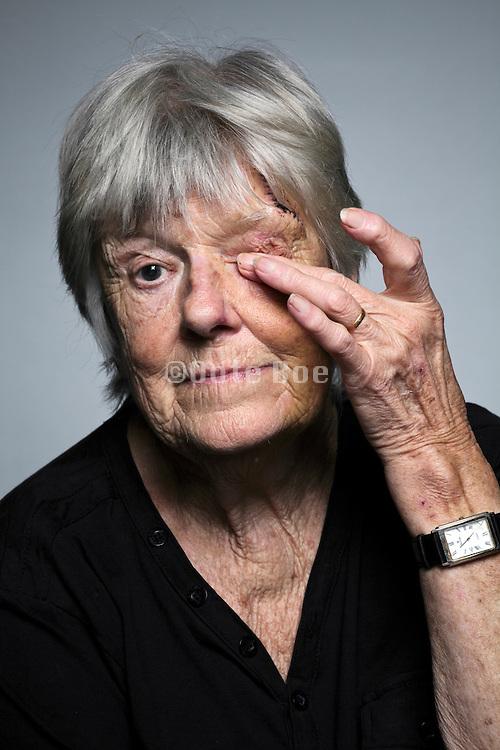 Senior woman with head injury