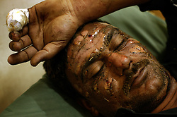 Hussein Udafa, 31, who was burned during a bombing, says he watched one of the suicide bombers check his watch multiple times before detonating himself outside the shrine, Baghdad, Iraq, March 2, 2004. Udafa also said the the bomber did not have the facial structure or coloring of an Iraqi. At least two suicide bombers blew themselves up outside of Al-Kadhimiya Mosque in Baghdad, where thousands of Shia Muslims had gathered to celebrate the Ashura religious festival. In what coalition authorities said was a coordinated attack, several bombs exploded in the holy city of Karbala as well, where an estimated two million Shias from Iraq, Iran, Pakistan and as far away as Canada had gathered for the holiday, which commemorates the martyrdom of Imam Hussein, grandson of the Prophet Mohammed. At least 143 people were killed in the combined attacks.