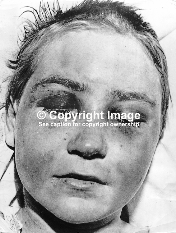 Elizabeth Hyland, 15 years old, pictured in a Belfast Hospital recovering from a 5 day ordeal which ended with her being tarred and feathered by members of the Provisional IRA who claimed she was an informer for the RUC Special Branch. 197205110000EH.<br /> <br /> Copyright Image from Victor Patterson, Belfast, UK<br /> <br /> t: +44 28 9066 1296 (from Rep of Ireland 048 9066 1296)<br /> m: +44 7802 353836<br /> e: victorpattersonbelfast@gmail.com<br /> <br /> www.images4media.com<br /> <br /> Please see my full Terms and Conditions of Use at https://www.images4media.com/p/terms-conditions - it is IMPORTANT that you familiarise yourself with them.<br /> <br /> Images used online incur an additional cost. This cost should be agreed in writing in advance. Online images must be visibly watermarked i.e. © Victor Patterson or that of the named photographer within the body of the image. The original metadata must not be deleted from images used online.<br /> <br /> This image is only available for the use of the download recipient i.e. television station, newspaper, magazine, book publisher, etc, and must not be passed on to a third party. It is also downloaded on condition that each and every usage is notified within 7 days to victorpattersonbelfast@gmail.com.<br /> <br /> The right of Victor Patterson (or the named photographer) to be identified as the author is asserted in accordance with The Copyright Designs And Patents Act (1988). All moral rights are asserted.
