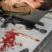 An Afghan soldier wounded in an improvised explosive device attack (IED) in Arghandab District in Kandahar, Afghanistan lies beside a from a pool of blood from a US soldiers amputated leg which was blown off in the same attack as they are evacuated for treatment in a US Army medevac helicopter at Kandahar Airfield..(Credit Image: © Louie Palu/ZUMA Press/The Alexia Foundation)...