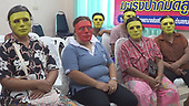 Thai hospital gives masks to women embarrassed about getting Pap smear