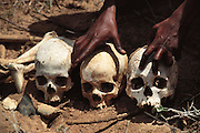 Human skulls unearthed by a demining crew in Hargeisa, Somaliland. They were found in a mass grave where 200 locals were executed by Siad Barre Government troops in 1988. Hargeisa, Somaliland. Somaliland is the breakaway republic in northern Somalia that declared independence in 1991 after 50,000 died in civil war.March 1992.