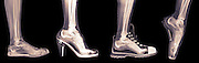 X-ray of a woman's foot in 4 different shoes (from left to right) Trainers, High Heel, Running and Ballet