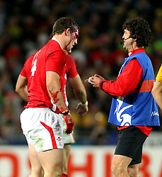 © SPORTZPICS/ Seconds Left Images 2011 - Wales' George North is treated as blood pours from a head wound injury - Wales v Australia - Rugby World Cup 2011 - Bronze Final - Eden Park - Auckland - New Zealand - 21/10/2011 -  All rights reserved..