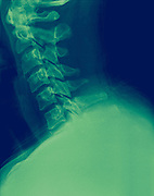 X-ray of a human Cervical spine Side View