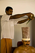 A patient has warm oil poured onto head and held there for an hour as part of the full Ayurveda treatment. This massage is said to improve mental functions. Kalari Kovalikom, Kerala, India.